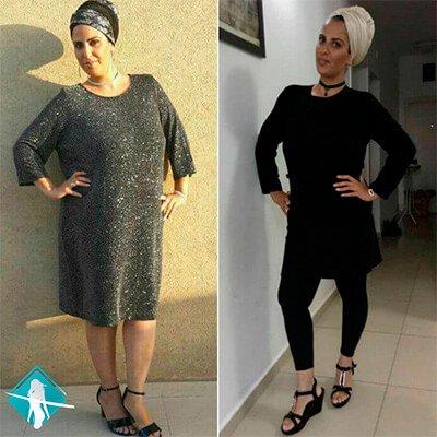 תמונה לפני ואחרי - דיאטת לורן