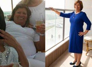 תמונה של דיאטת דש לפני ואחרי