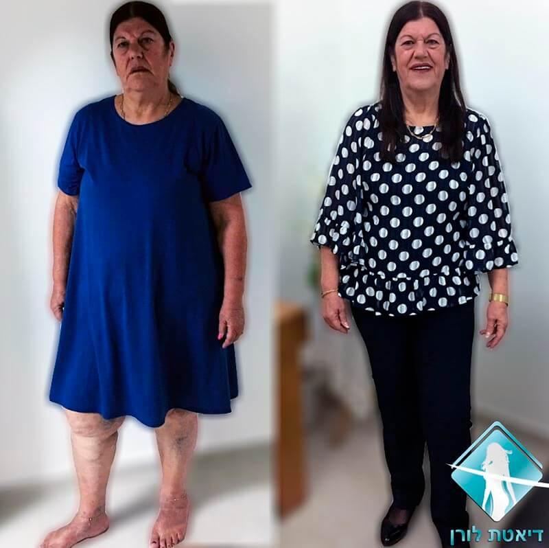 יהודית ממן ירדה 30 קילו בכל התהליך
